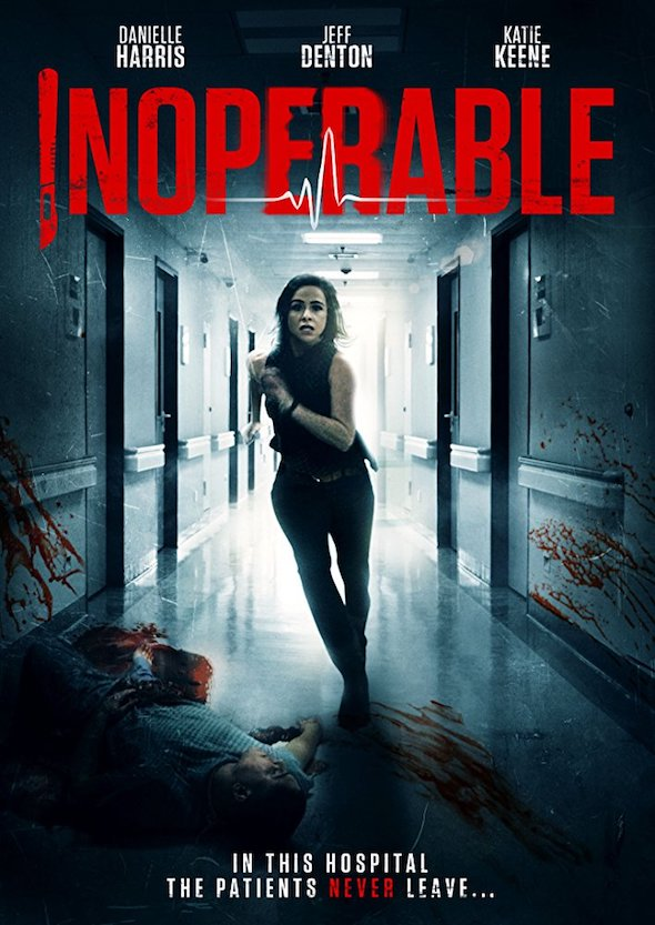 Inoperable (2017) - Movie Review